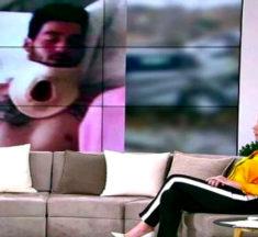 Σοκάρει η εικόνα του αγαπημένου πρώην παίκτη του Power Of Love μετά το τροχαίο Του έραψαν λάθος το μάτι